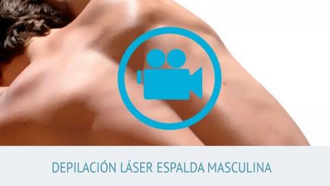 video depilación láser masculina