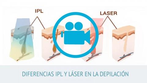 Video Diferencias IPL y láser en la depilaión