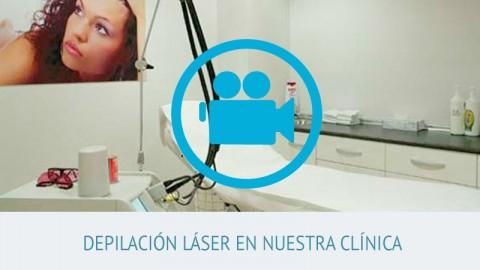 video depilación láser iccestetico
