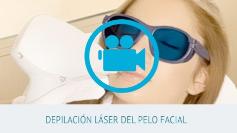 video depilación láser del pelo facial