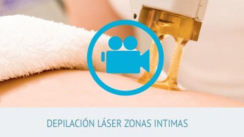 video depilación láser zonas intimas