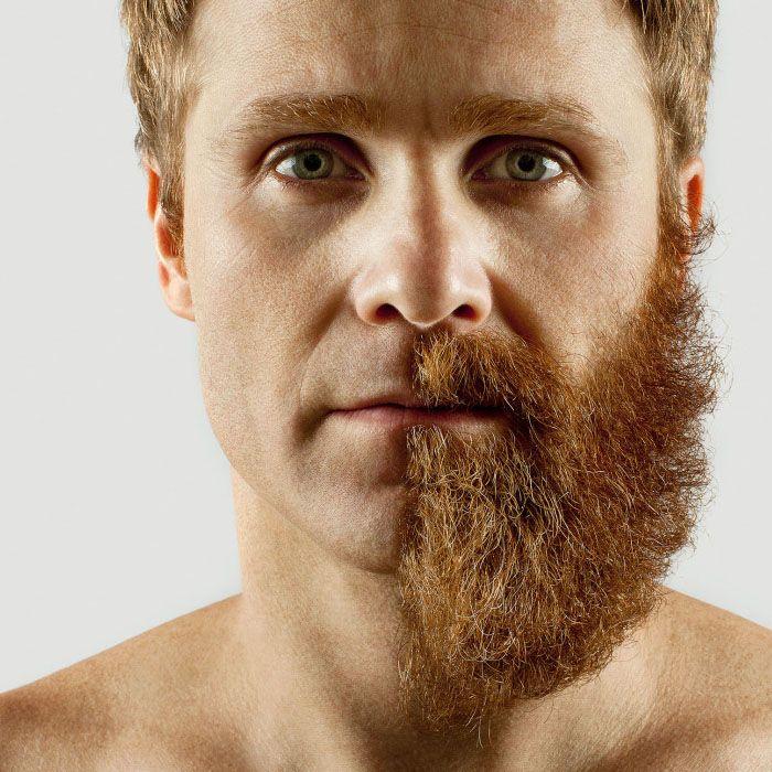 Depilación laser barba masculina