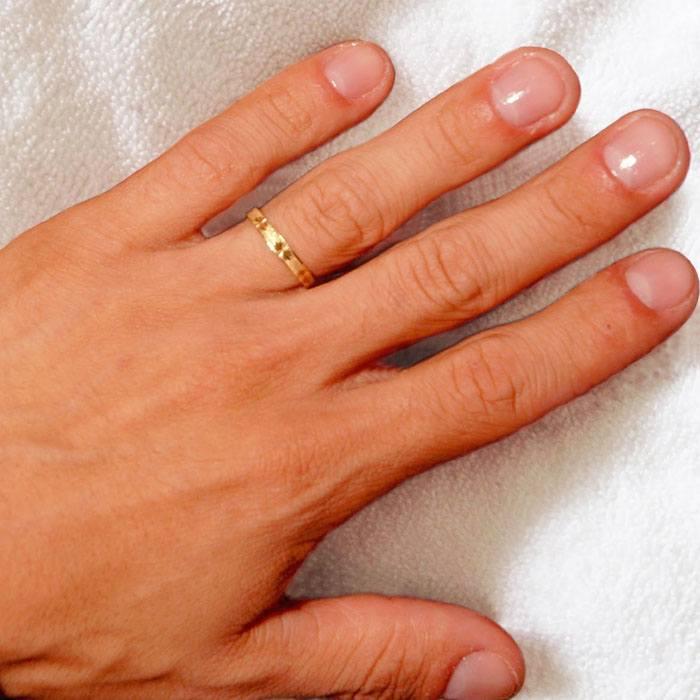 Depilación Láser en los dedos de las manos